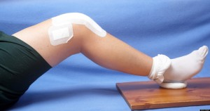 Closeup of total knee replacement patient exercising