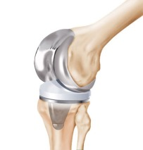 knee_joint_replacement